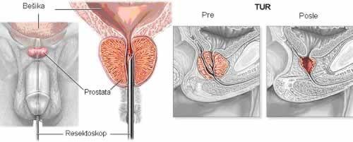 ahol a prostatitis fájdalma van